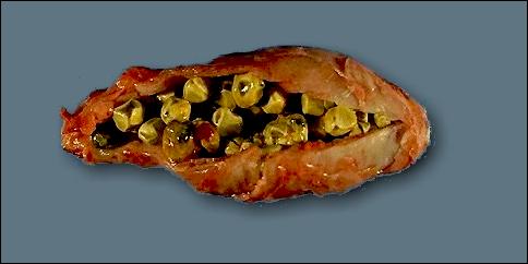 safra kesesindeki taş bitkisel tedavi