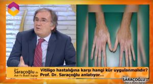 Vitiligo hastalığı bitkisel tedavi