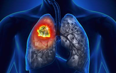 Akciğer kanseri türleri