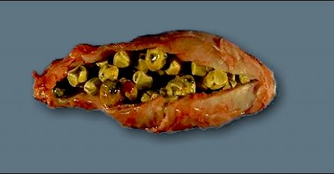 Safra kesesinde taş, midedeki tümörler ve gastrit için kürler