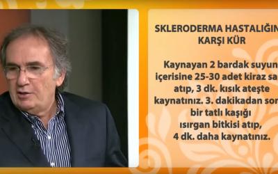 Skleroderma kürü