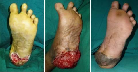 Şeker hastalarında ayak yaraları bitkisel tedavi