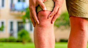 İltihaplı eklem romatizması bitkisel tedavisi